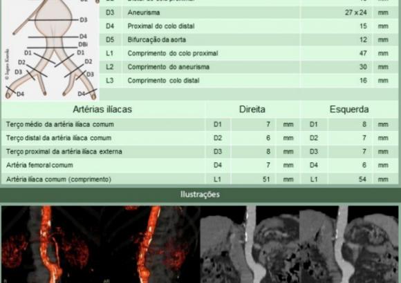 Angiotomografia de Aorta Abdominal