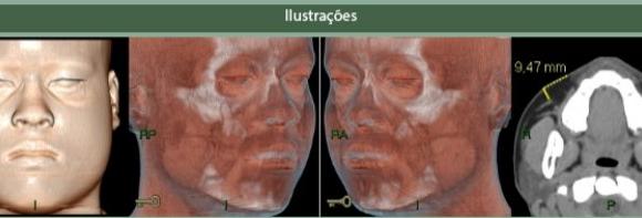 Tomografia Computadorizada dos Seios Paranasais