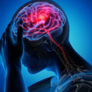 A investigação na fase aguda do acidente vascular cerebral (AVC)